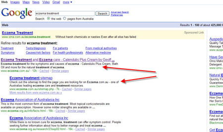 "#1 for ""Eczema Treatment"" in Google"