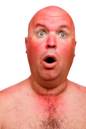 sunburnt-guy