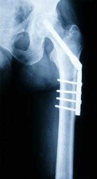 broken-hip